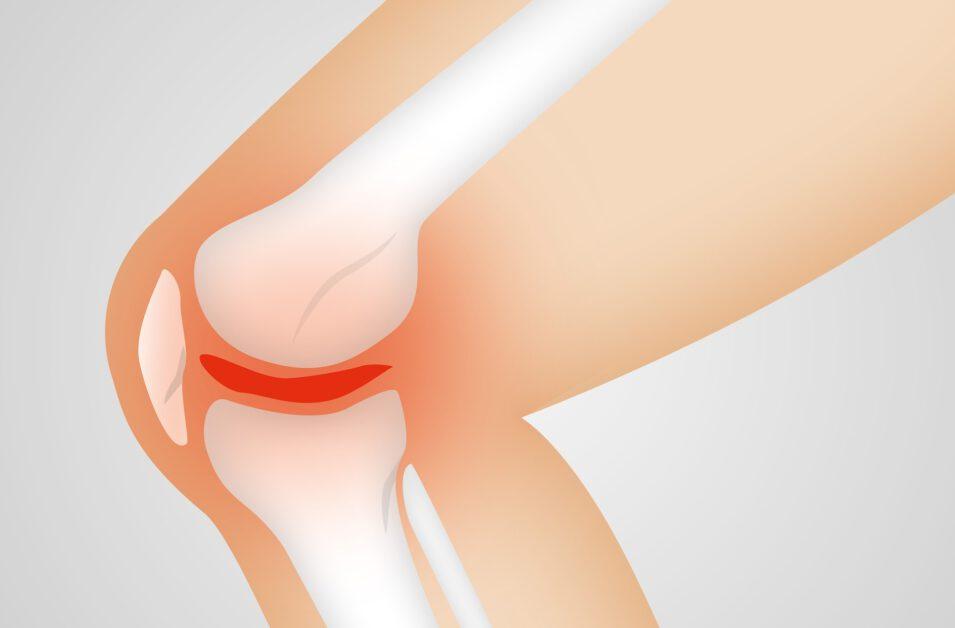 Is fysiotherapie even goed als een operatie bij een acuut ontstane meniscusscheur?